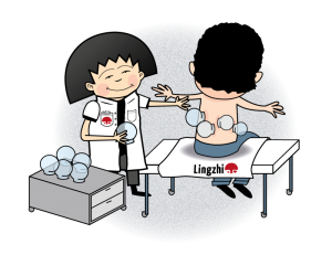 Lingzhi_cupping