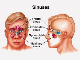 sinusitis acupuncture
